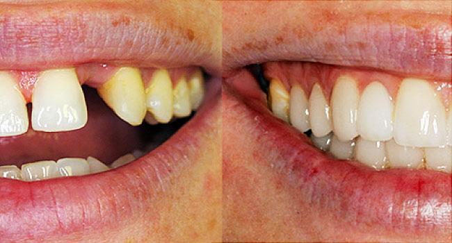 Imagem com antes e depois de tratamento odontológico. A primeira mostra dentes quebrados, a segunda mostra os dentes perfeitos após o procedimento.
