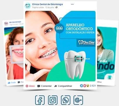 Posts para Instagram de Dentista