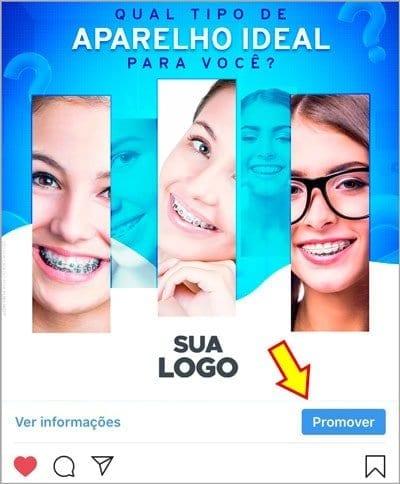 Marketing Odontológico: Como criar anúncios no Instagram para Dentista